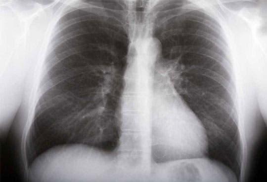 Tuberculosis sigue entre nosotros