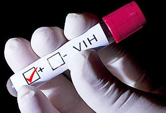 Impartirán curso para atención de pacientes VIH