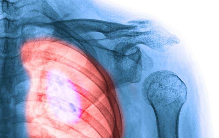 Diagnostico oportuno, evite cáncer de pulmón