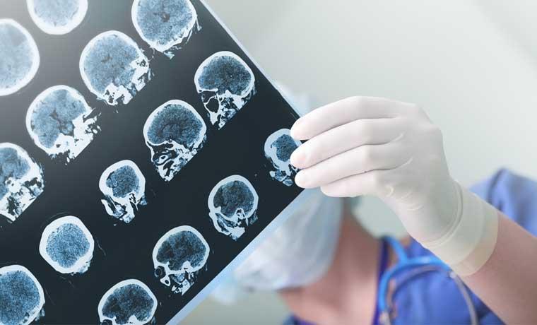 Tratamiento en Hospital México elimina aneurismas cerebrales