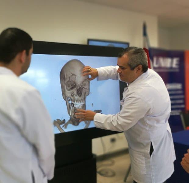 Unibe innova con computadora de alta tecnología médica
