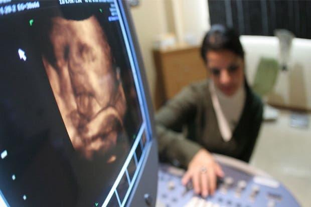 Hospital Calderón Guardia adquiere 19 ultrasonidos de última tecnología