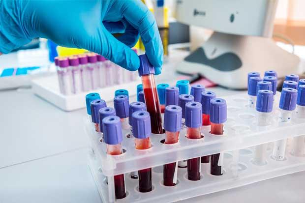 Caja busca donadores de sangre