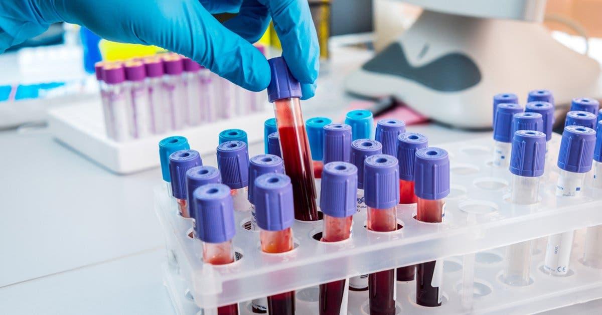 Hospital Clínica Bíblica cuenta con laboratorio único en detección de enfermedades de transmisión sexual
