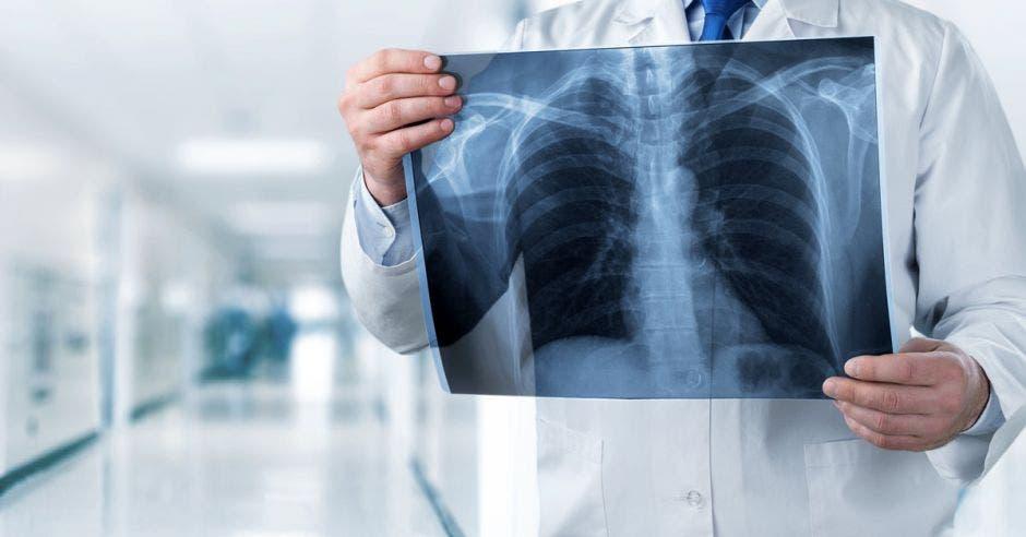 el cáncer de próstata puede ir a los huesos