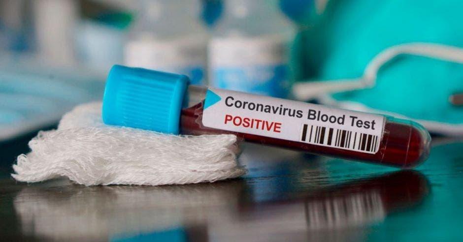 tubo con muestra de sangre