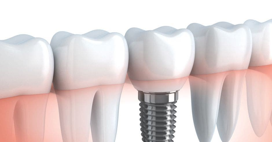 Una serie de dientes e implantes dentales