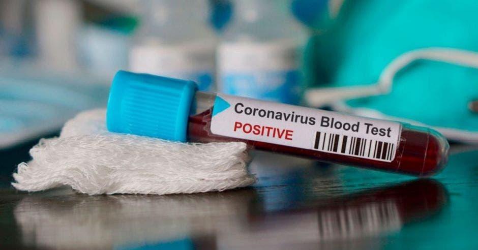 Prueba de sangre para analizar por Covid-19